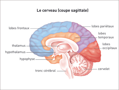 cancer en cerebral