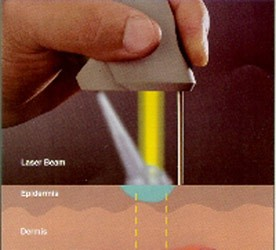 warts treatment by laser