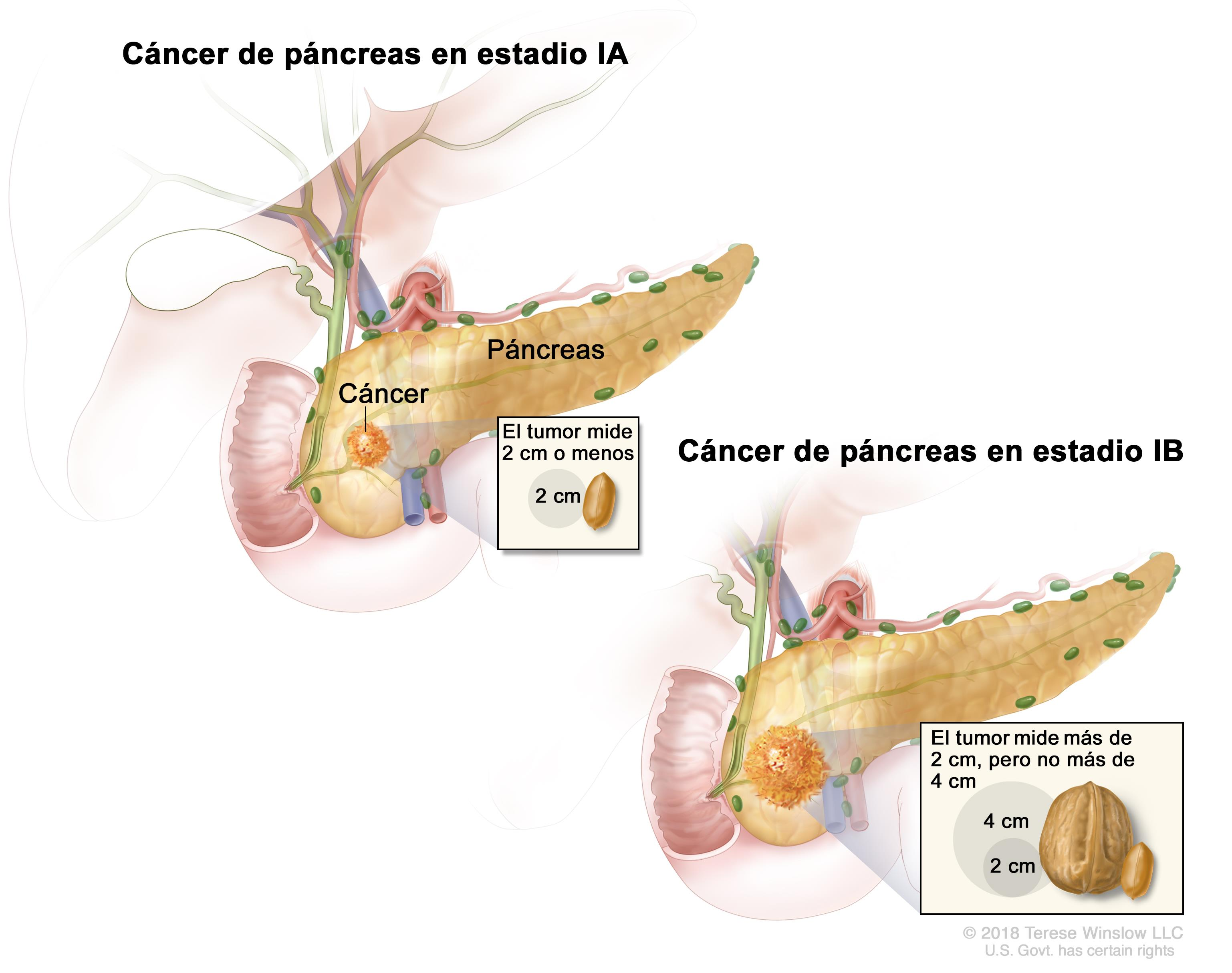 cancer de pancreas y bilirrubina alta testicular cancer vascular invasion