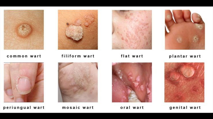 warts pregnancy icd 10