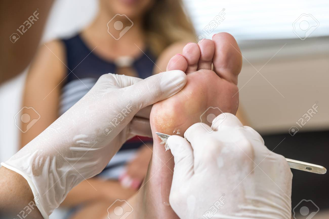 wart on foot pedicure hpv vaccine pap smear