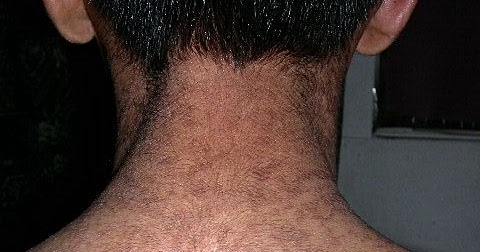 hpv roof of mouth