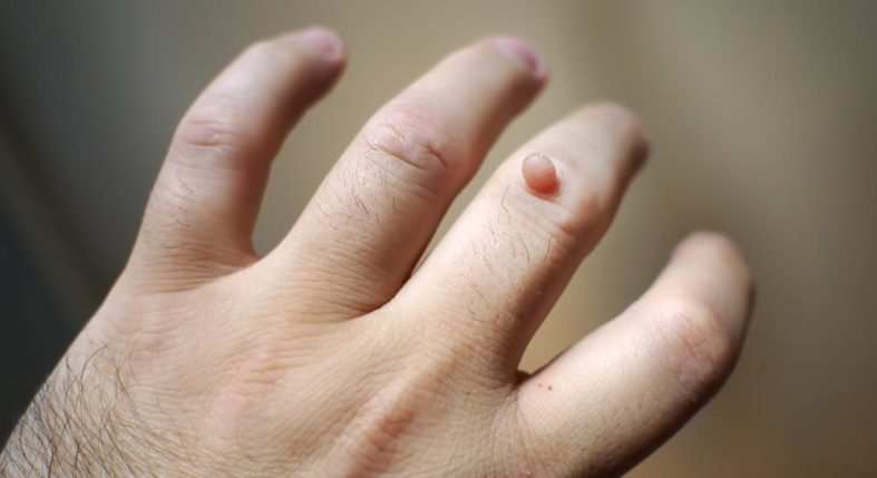 hpv warzen an der hand squamous papilloma lesion