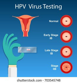 hpv virus how to test for it gastric cancer brca