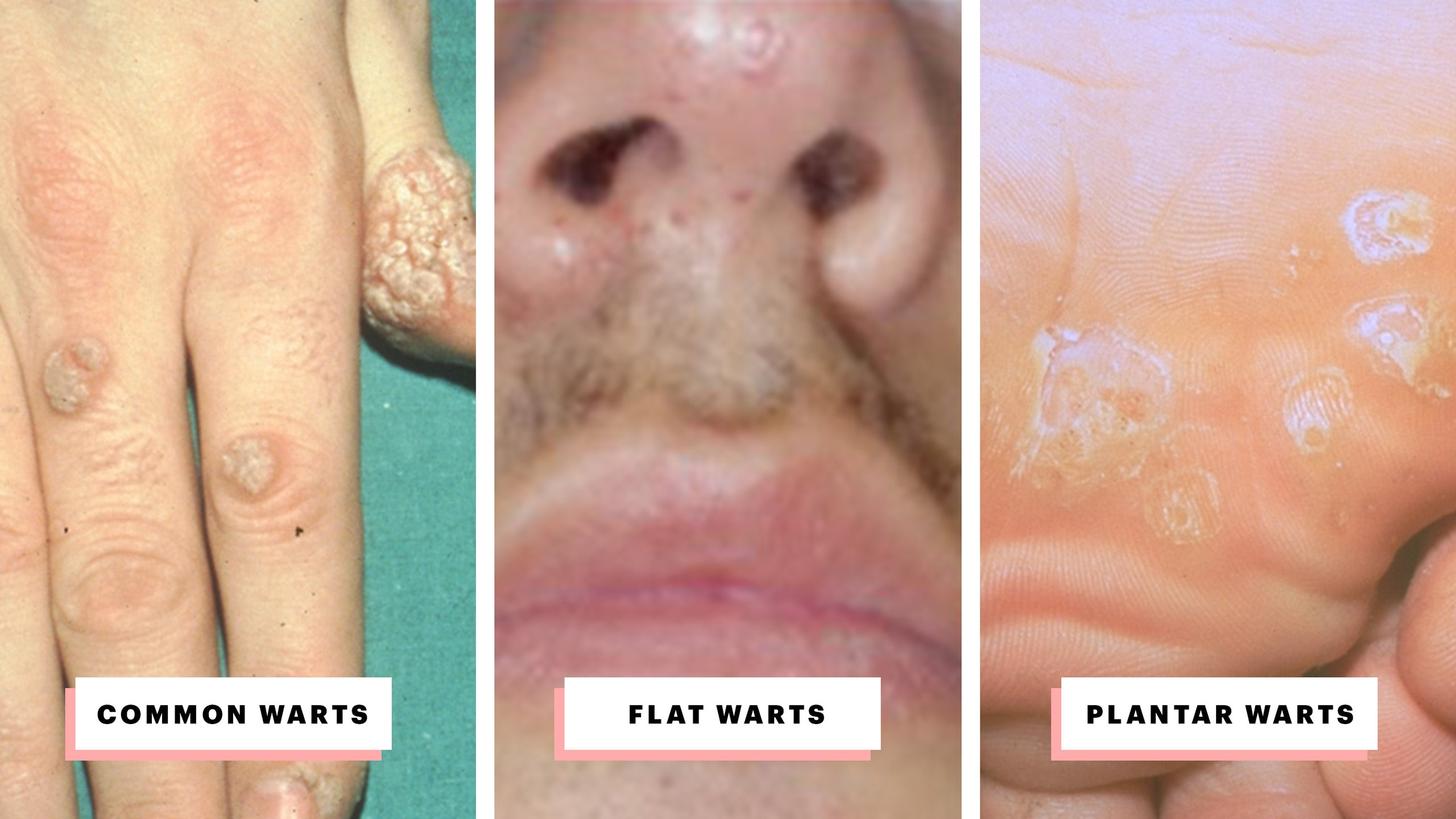 hpv warts laser treatment simptome paraziti in corp