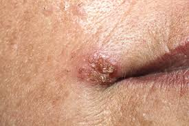 papillary thyroid carcinoma que es wart treatment recommendations