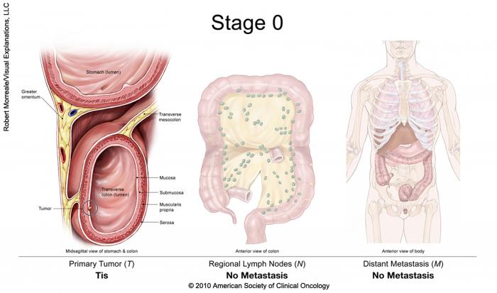 rectosigmoid cancer stage 4