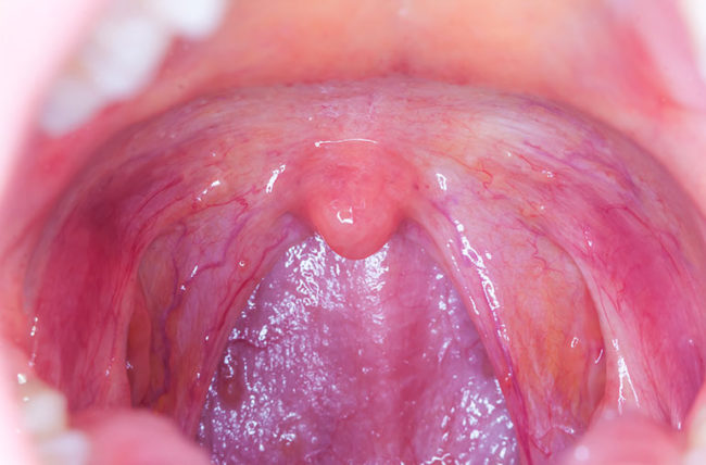 hpv virus symptoms mouth is intraductal papilloma related to hpv
