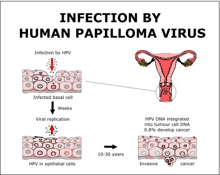 hpv that causes cancer symptoms cancer laringe avanzado
