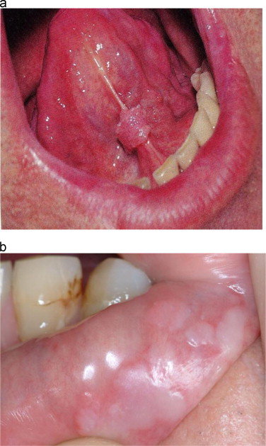 hpv mouth lesions