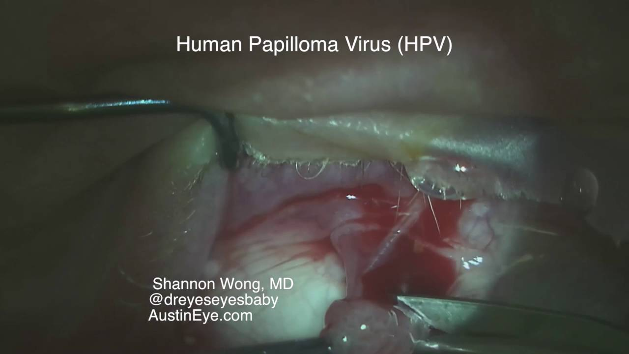 excision of papilloma papilloma virus cose
