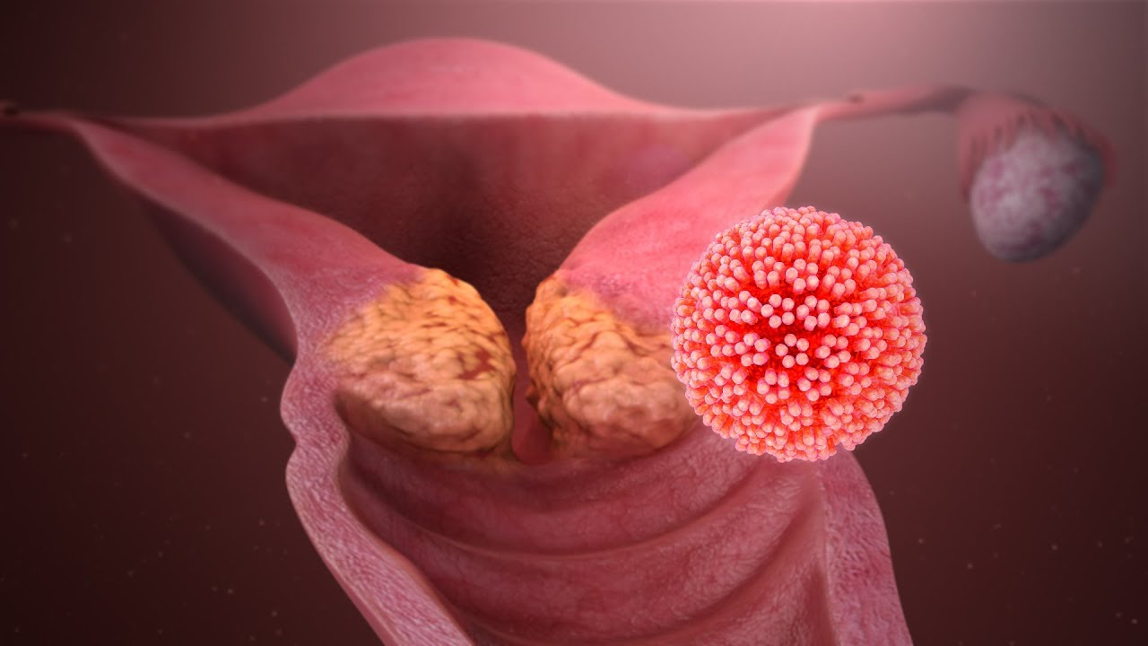 ovarian cancer hereditary hpv best treatment