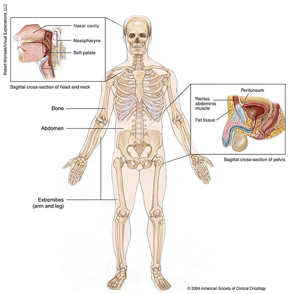 sarcoma cancer picture incidence of hpv positive head and neck cancer