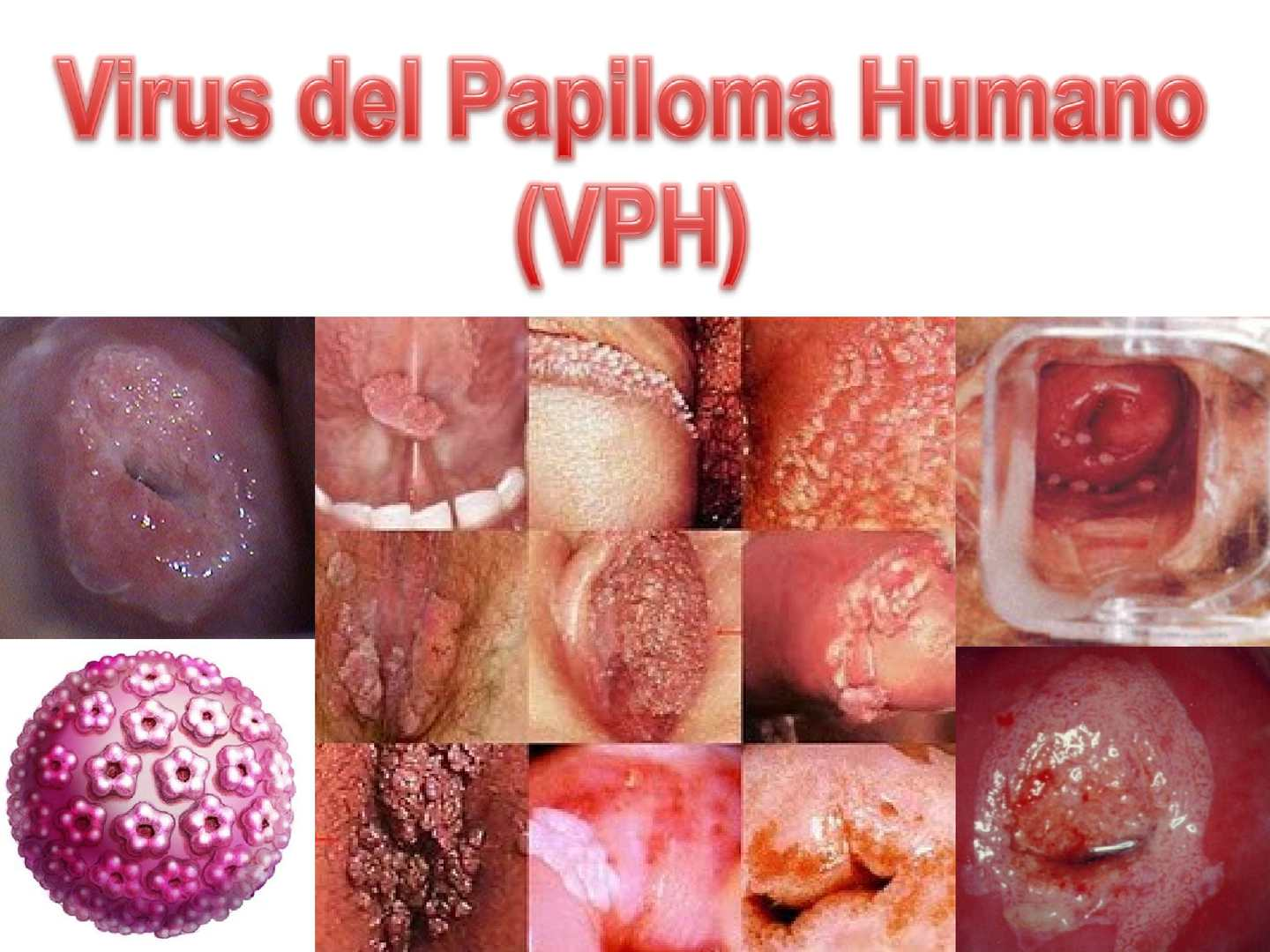 virus del papiloma humano diagnostico