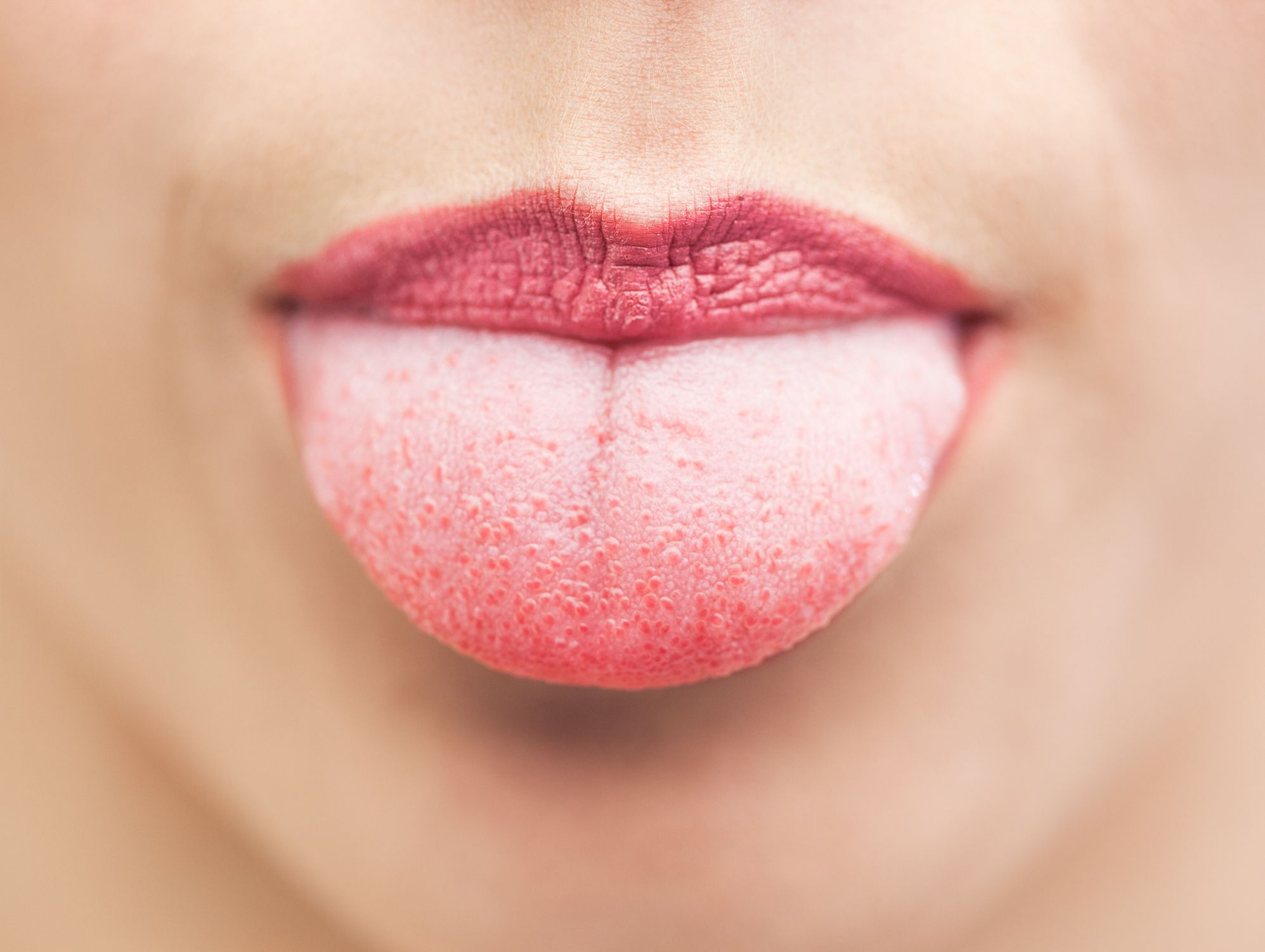 swollen papillae tongue treatment
