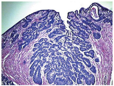 peritoneal cancer lump anthelmintic definition with example