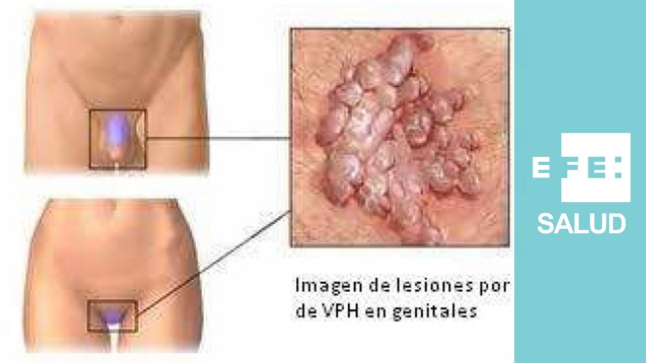 papiloma ano mujer intraductal papilloma with squamous metaplasia