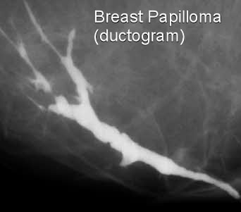 breast duct papilloma surgery hpv virus a dna
