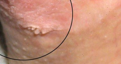 hpv tca treatment wart on foot remedy
