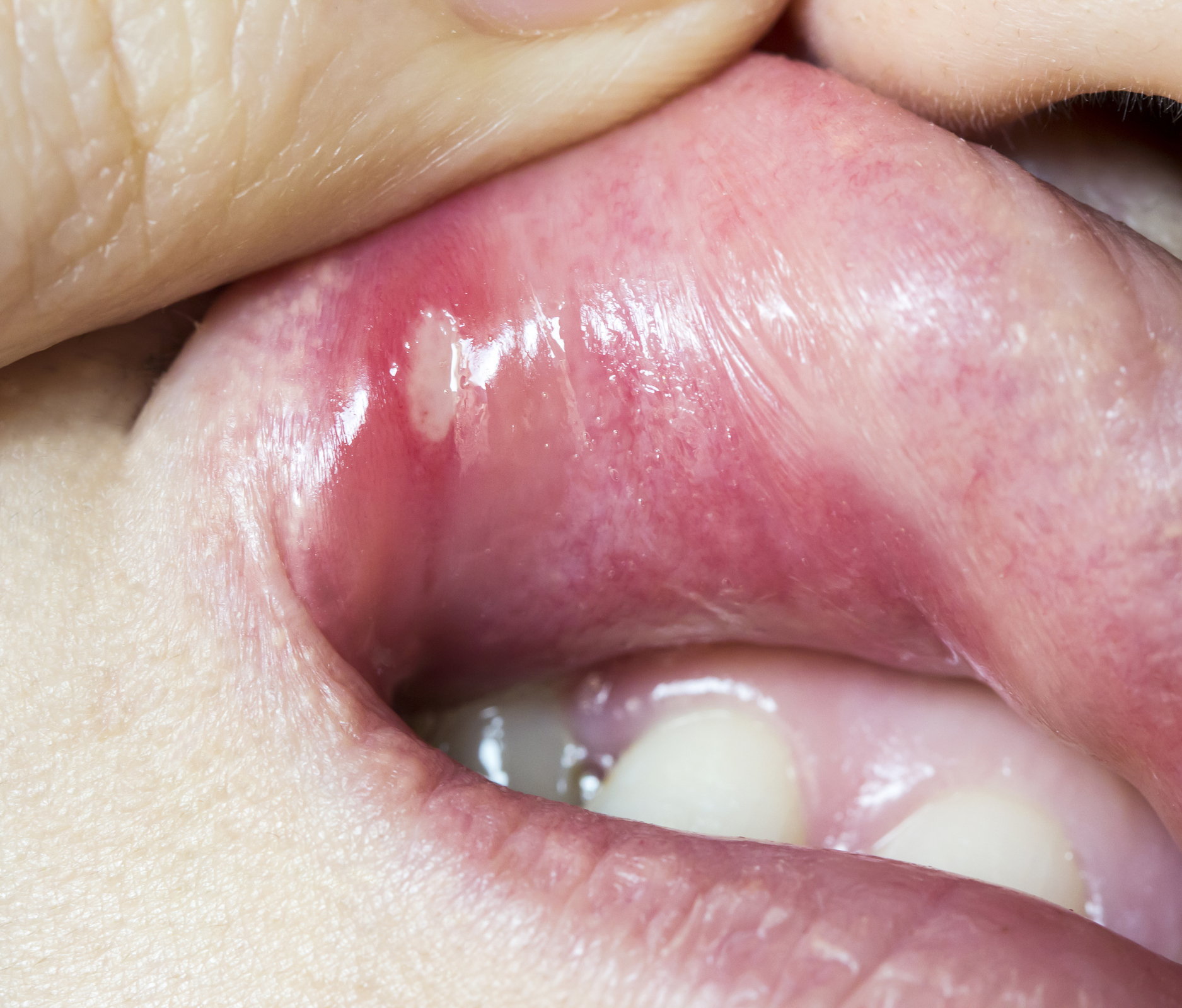 cancer hpv mouth