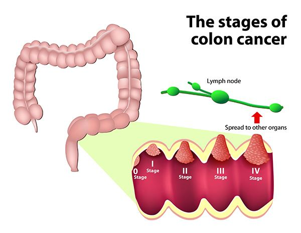 rectosigmoid cancer stage 4 testicular cancer quick facts
