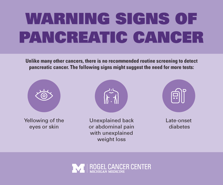 pancreatic cancer very early signs tratament pt limbrici