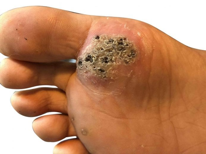 warts on hands are they contagious