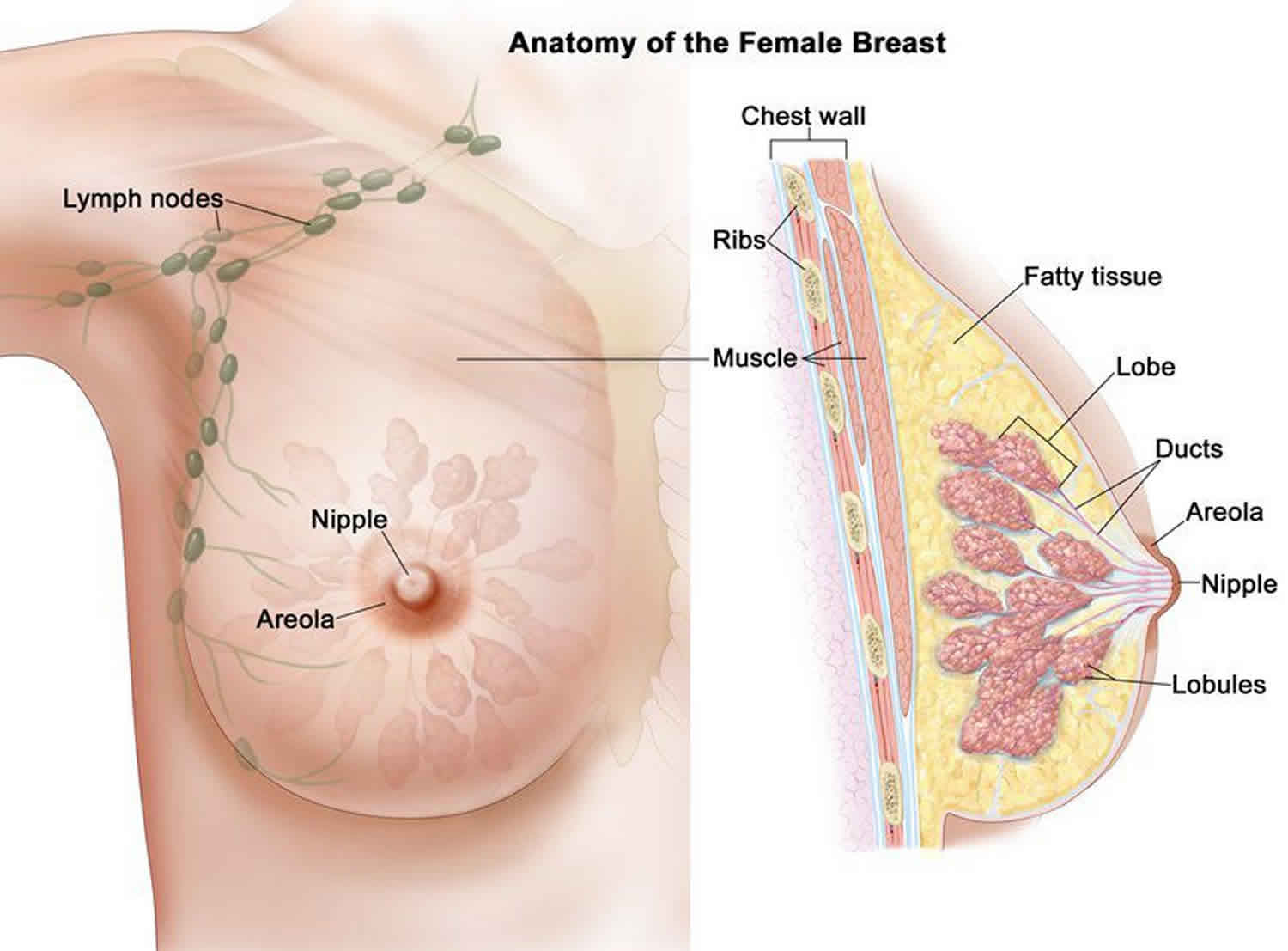 papilloma of the breast surgery cisticercozele