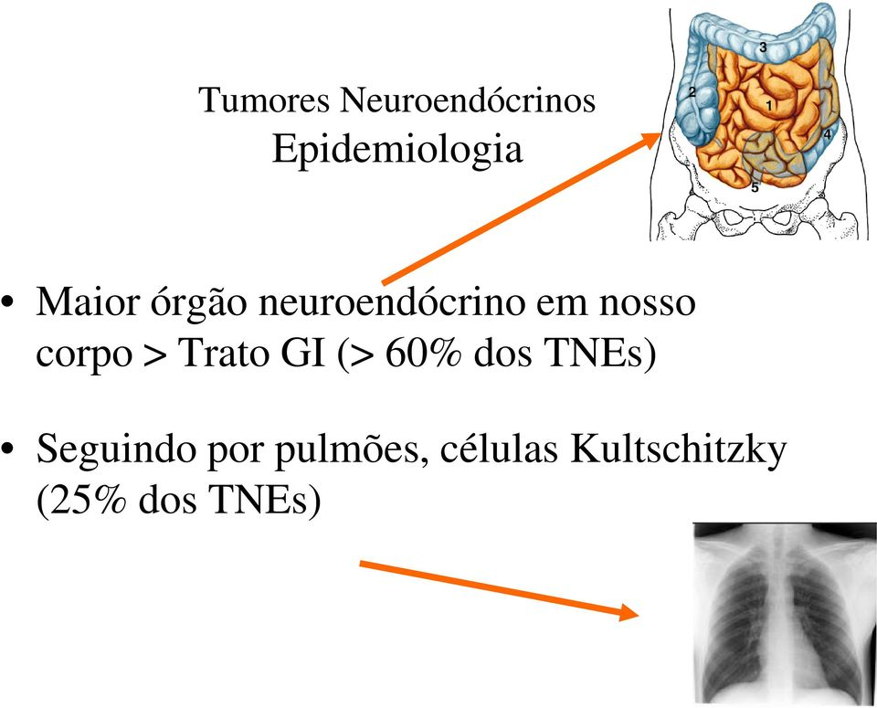 cancer neuroendocrino na regiao cervical cancer colon ganglions atteints