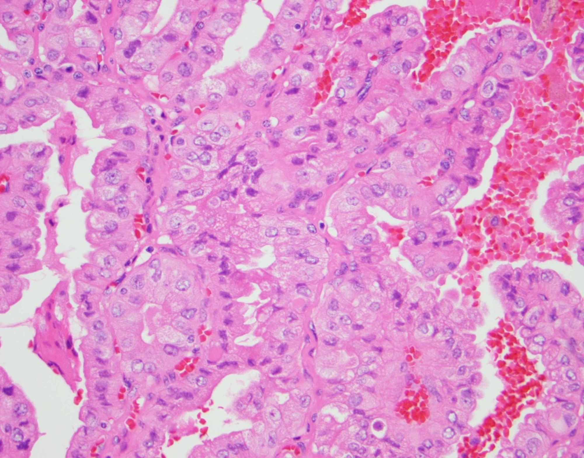 papillary thyroid cancer with tall cell features