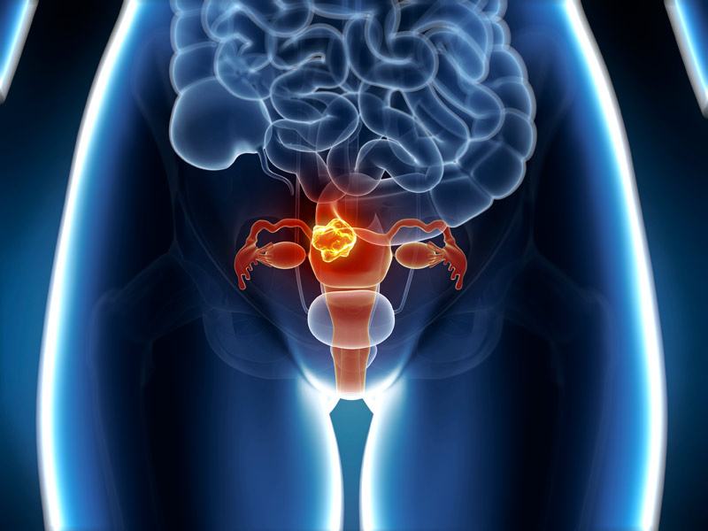 genetic cancer of the womb