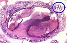 papillary thyroid cancer pictures