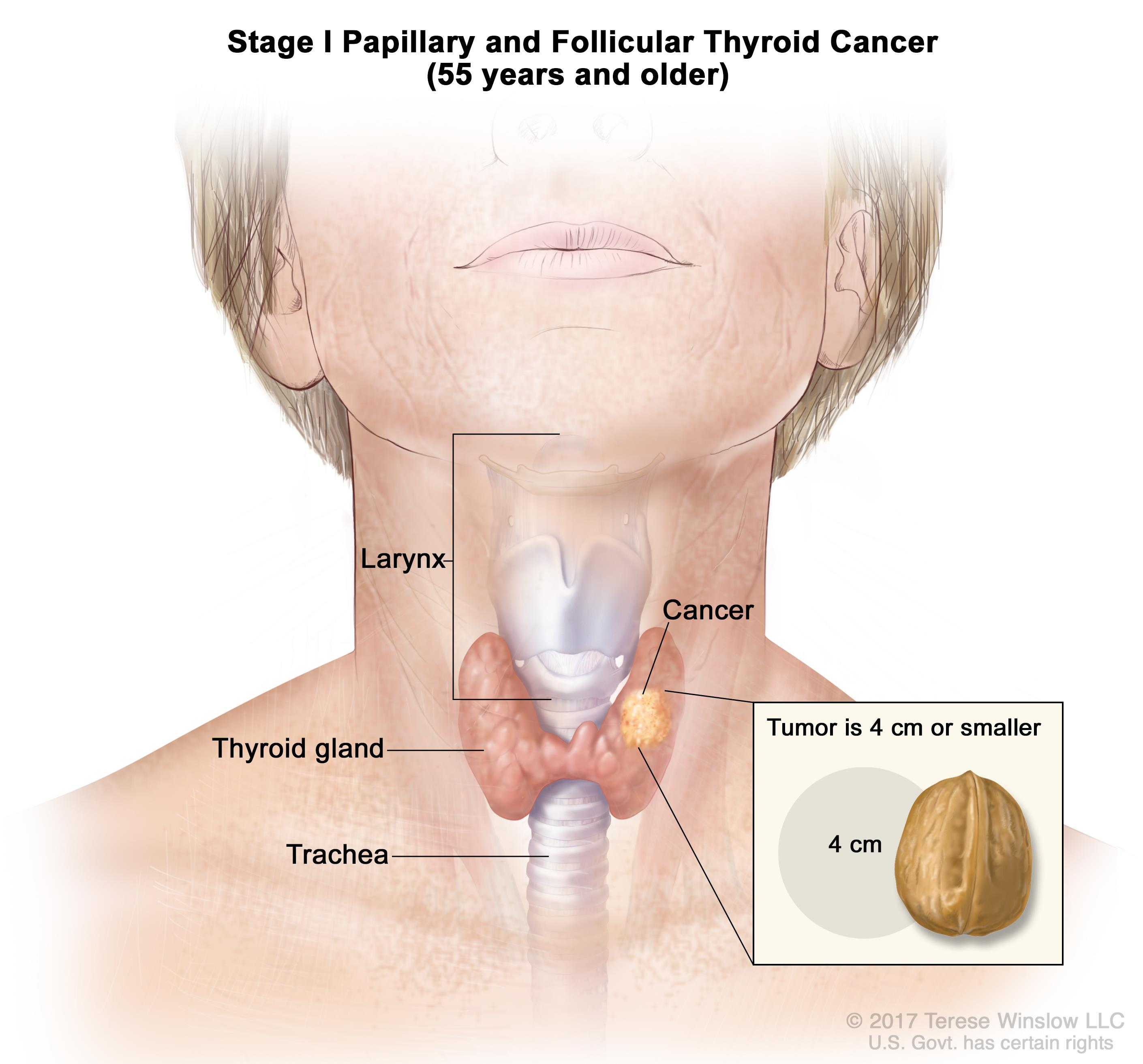 hpv cancer in females