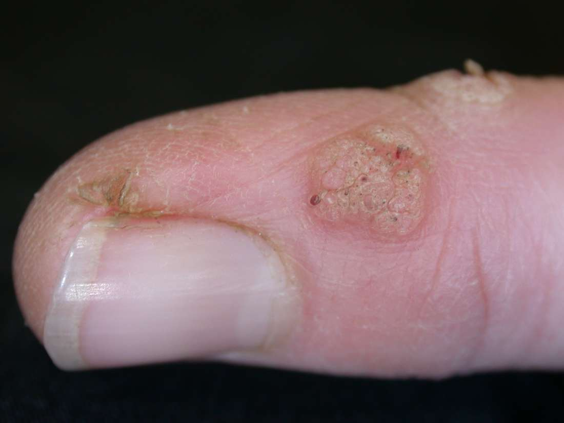 warts on hands not going away