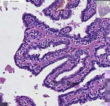 florid intraductal papillomatosis hpv cancer cervical