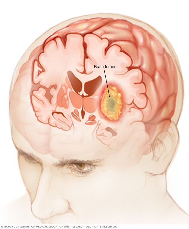 cancer cerebral gbm hpv not warts