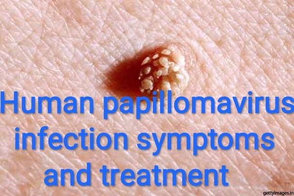 hpv squamous cell carcinoma treatment