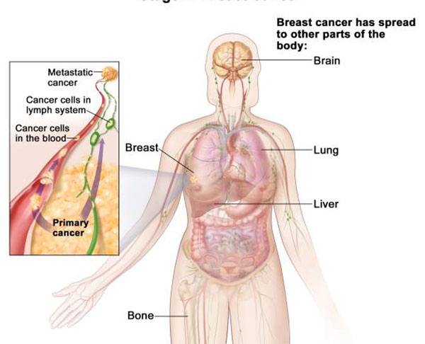 metastatic cancer no primary