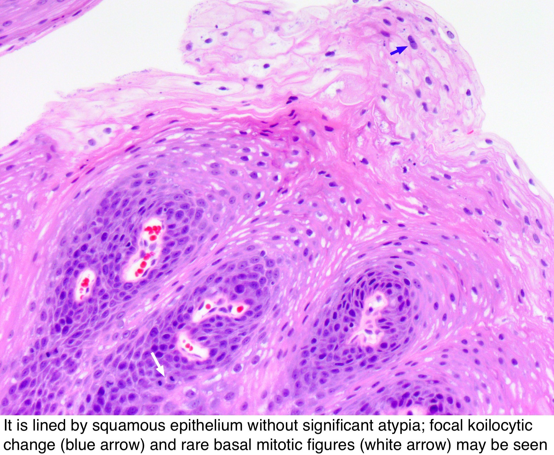 detoxifiere retete naturiste hpv oropharyngeal cancer recurrence