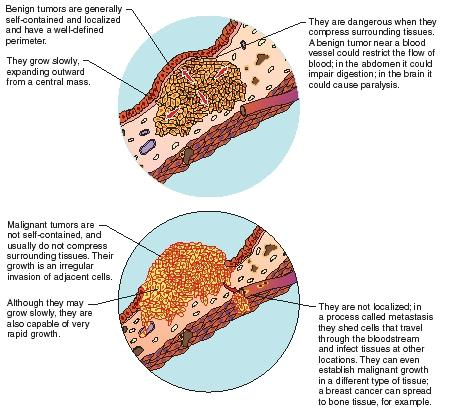 cancer benign tissue human papilloma virus (hpv) i