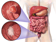 cancer benign de colon