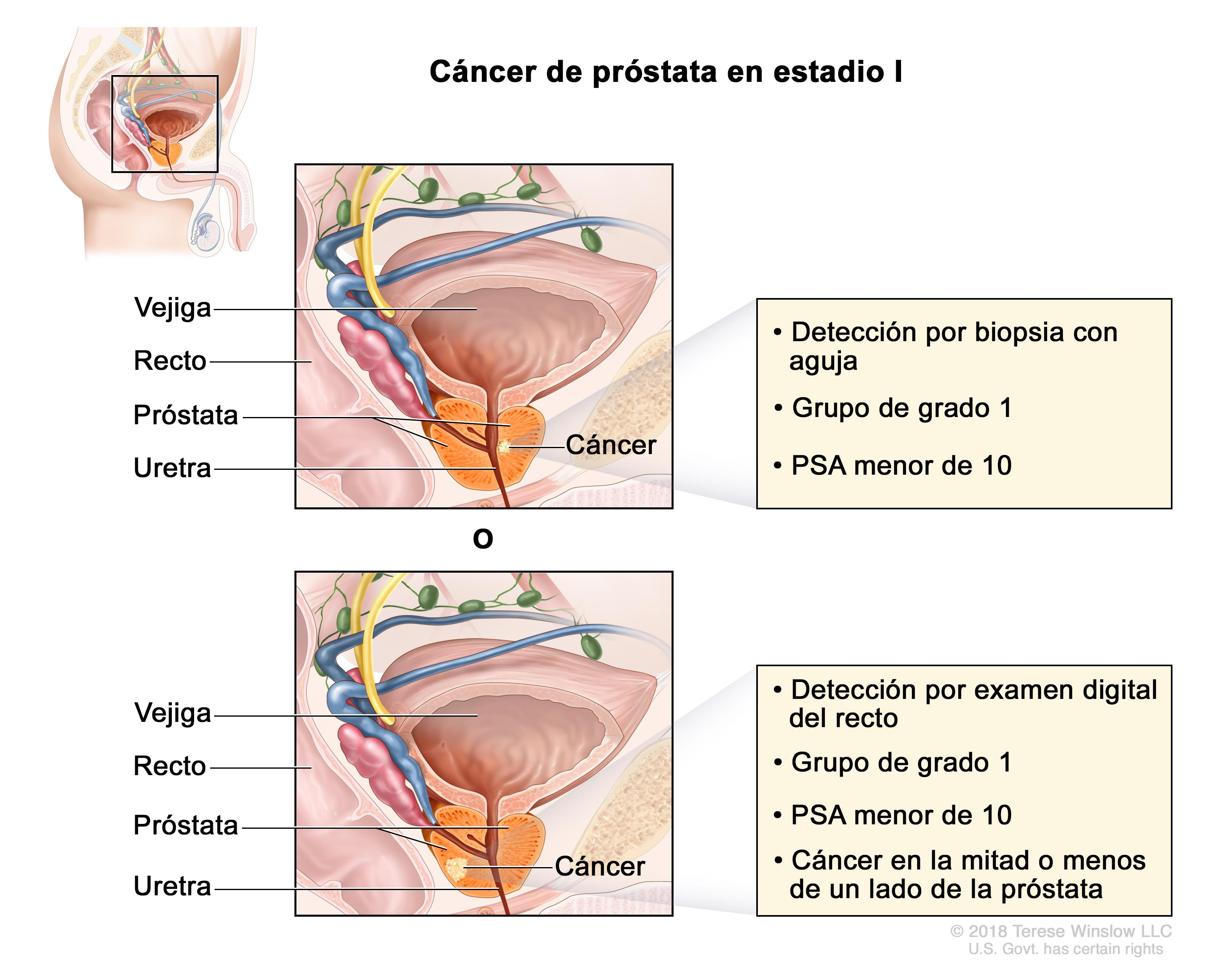 rectal cancer versus hemorrhoids