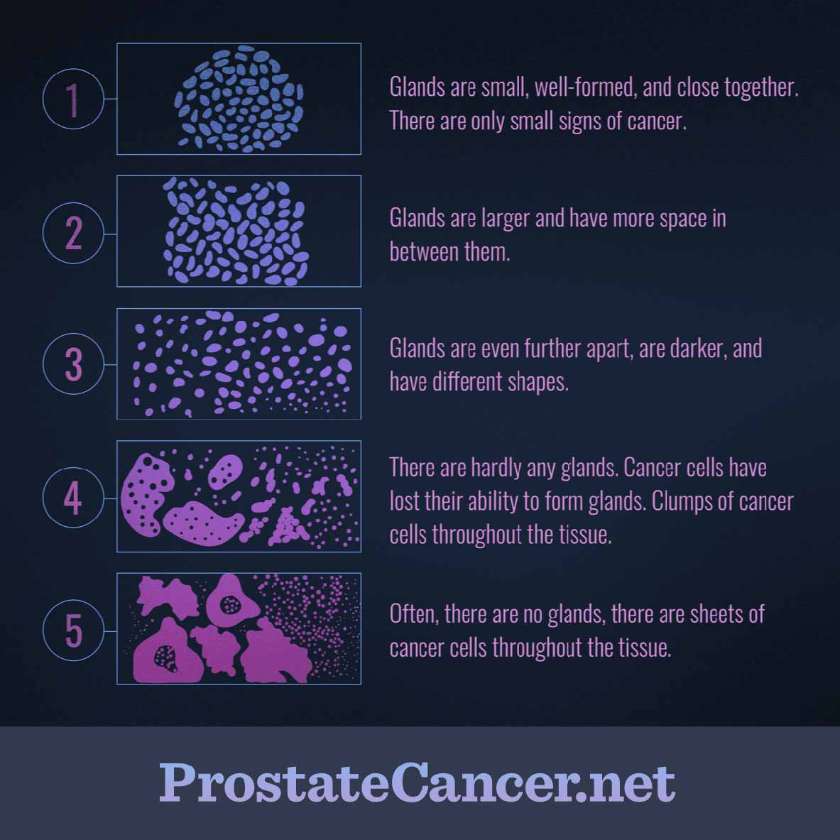 cancer de prostata gleason 8 cervical cancer staging