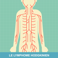 cancer hodgkinien