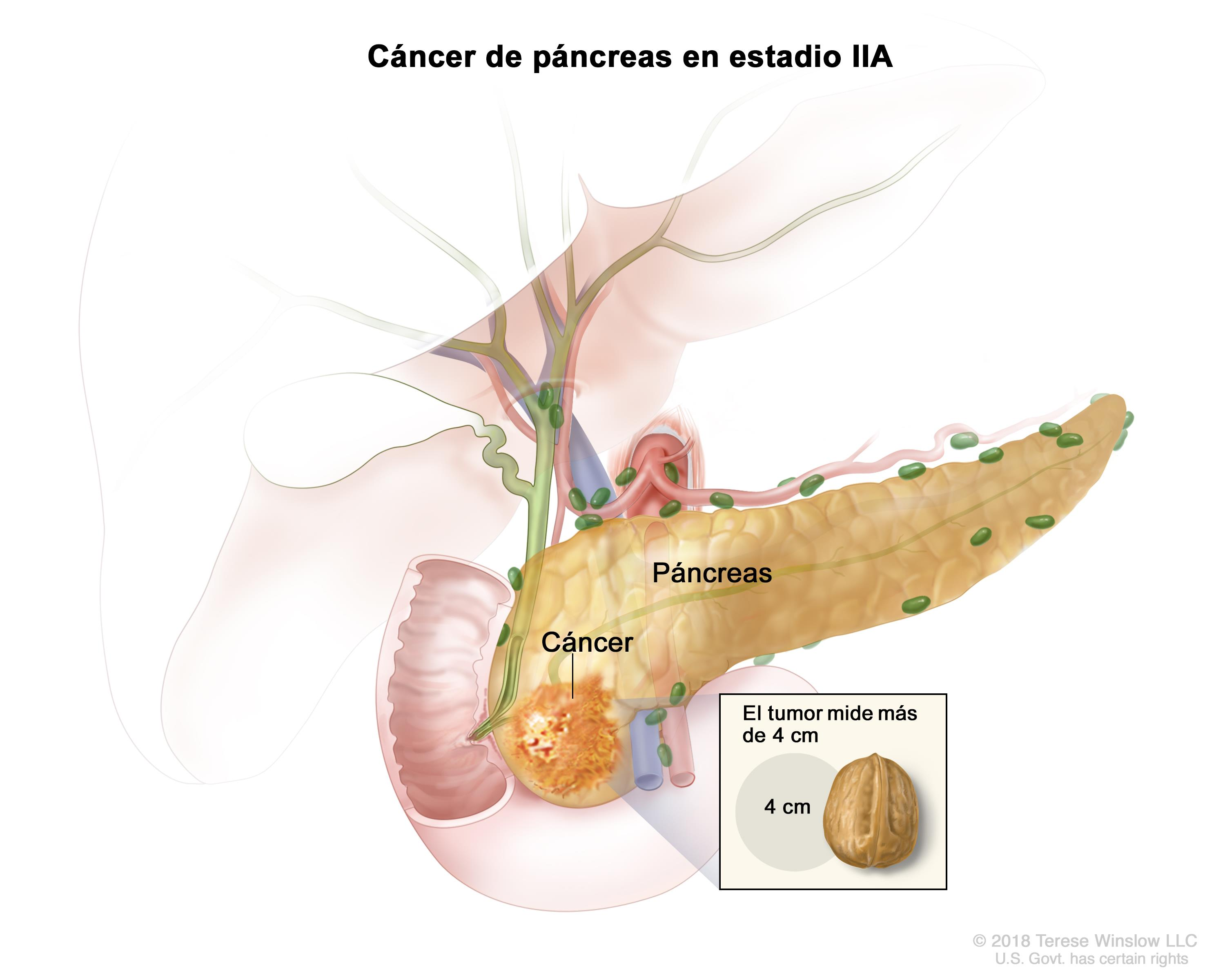 cancer primario peritoneal sintomas intraductal papilloma and cancer