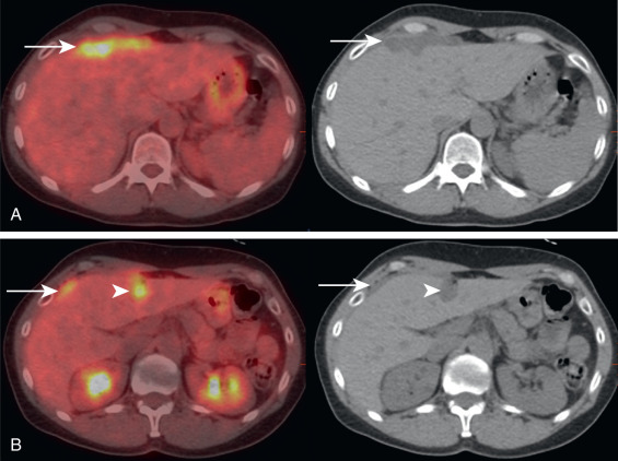 cancer with peritoneal metastasis