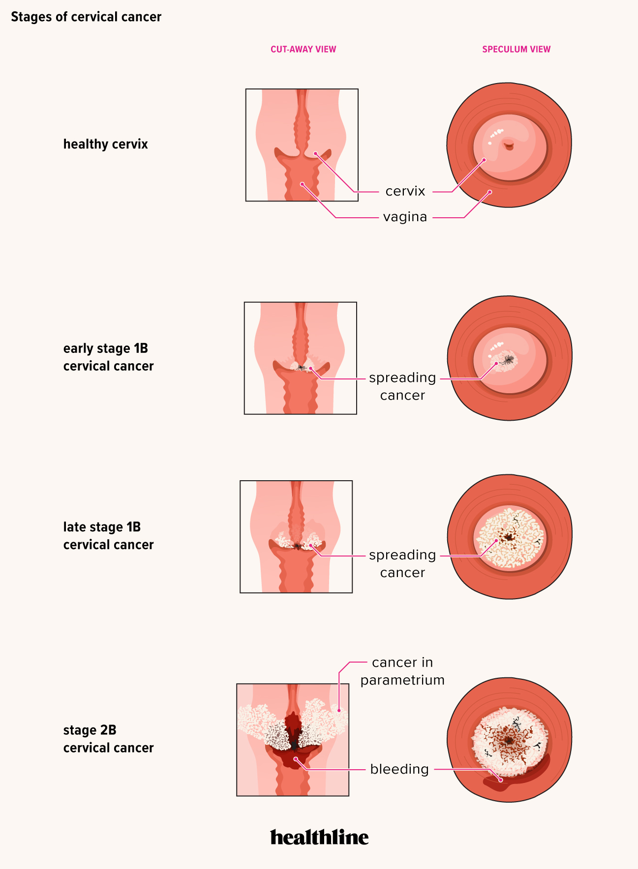 cervical cancer early signs and symptoms cancer testicular romania