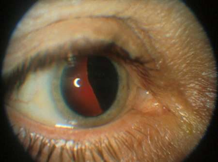 genetic cancer eye cancer uterine lining thickness
