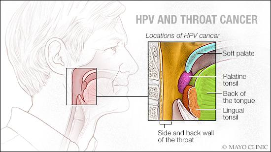 how curable is hpv throat cancer hpv gardasil doses