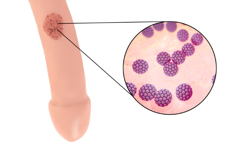 hpv and esophageal cancer squamous cell papilloma biopsy